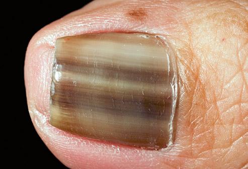 Black Nail Fungus